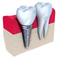 Dental Implant Cross Section