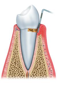 Initial Periodontal Disease
